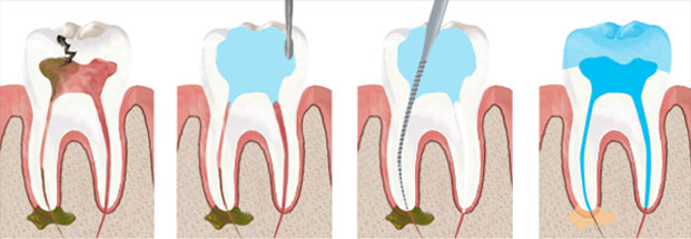 جراحی و درمان ریشه دندان