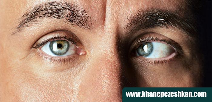درمان تاربینی چشم در بزرگسالان